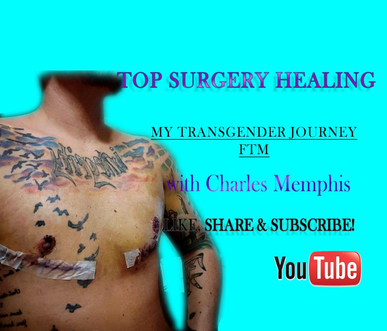 Top Surgery Healing - Transgender Journey - FTM